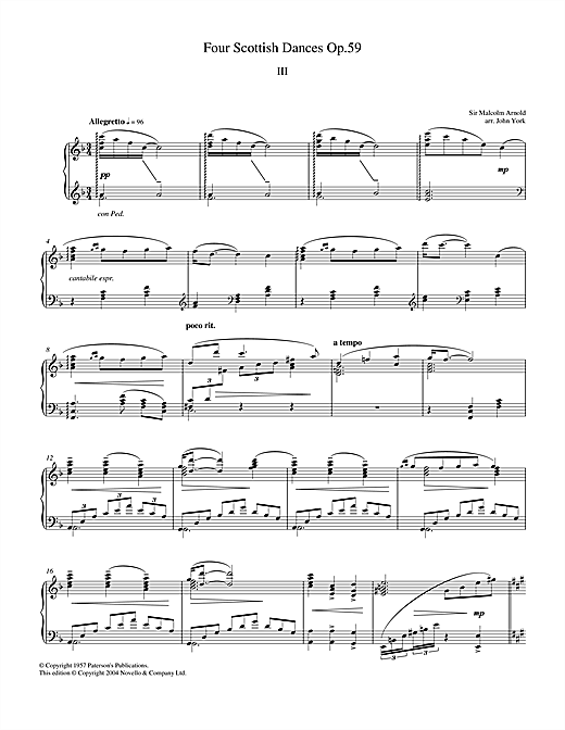 Download Malcolm Arnold 'Four Scottish Dances Op.59, No.3, Allegretto' Digital Sheet Music Notes & Chords and start playing in minutes